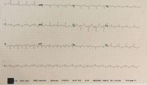 Electrocardiograma tras cardioversión eléctrica: ritmo sinusal, onda Q con elevación del segmento ST en las derivaciones ii, iii y aVF, y ondas T negativas en las derivaciones V4 a V6.