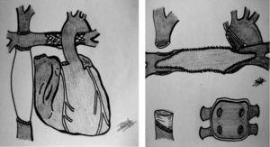 Esquema de conducto extracardiaco con stent en la arteria pulmonar izquierda. Campo quirúrgico tras desmontar el Glenn (vena cava superior) y conducto extracardiaco (manguito de PTFE en vena cava inferior), así como reconstrucción de ramas pulmonares con parche de pericardio/aorta del mismo donante (una vez retirado el stent).