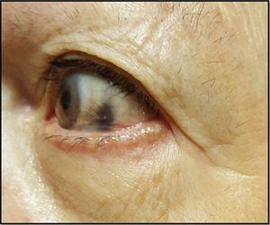 Pigmentación negra de la esclera ocular.