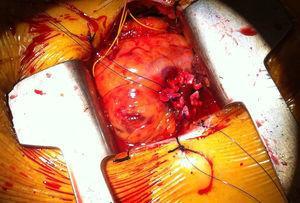 Cirugía abierta.
