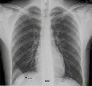 Radiografía PA de tórax. Masa de partes blandas (flecha), sin plano de separación, con el 9,° arco costal derecho y con bordes obtusos, en relación con la localización extrapulmonar («signo de la embarazada»).