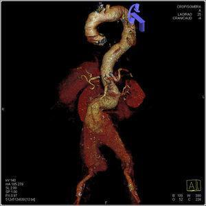 Reconstrucción rendering de una angio-TAC, donde se observa elongación de aorta torácica y abdominal, y aneurisma de aorta abdominal yuxtarrenal roto, que se extiende hasta las arterias ilíacas.