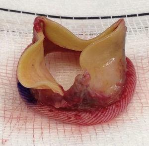 Rotura del velo protésico, paralela al poste comisural desde el borde libre.