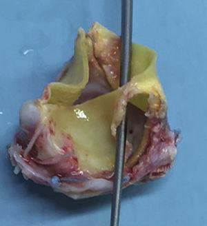 Rotura del velo protésico, que afecta a la base del velo, respetando el borde libre.