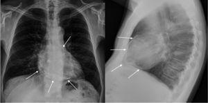 Radiografía de tórax. Se señala el saco pericárdico rodeando al corazón.