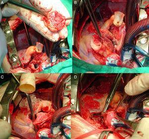 Imágenes intraoperatorias de estenosis subaórtica compleja que requirió cirugía de Ross-Konno para resolverla. A) Extracción del autoinjerto pulmonar completa. B) Sutura proximal del autoinjerto en el tracto de salida del ventrículo izquierdo. C) Comienza la sutura distal del conducto heterólogo con las ramas pulmonares, en el autoinjerto ya se ha anastomosado la coronaria izquierda. D) Final de la anastomosis de la coronaria derecha en el autoinjerto.