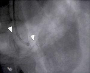 Se observa fractura de stent en la arteria renal izquierda (punta de flecha).