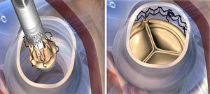 Crimpado e implante de la prótesis.