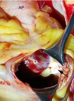 Imagen intraoperatoria de la ventriculotomía derecha vista desde el cirujano. Se aprecia el tumor (*) fijo al septo interventricular por un pedículo (flecha). El tumor se extiende hacia el tronco de la arteria pulmonar (AP).