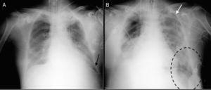Radiografías de tórax AP en decúbito supino. A) Radiografía realizada al ingreso. Se observan ambos senos costofrénicos libres y ausencia de signos de neumotórax. B) Radiografía realizada al tercer día de ingreso. Se observa cómo el ángulo costofrénico izquierdo se hace más profundo (signo del «surco costofrénico profundo» [círculo punteado negro]) y el hemidiafragma menos radioopaco con hiperlucencia basal.