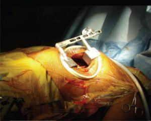 Técnica minimally invasive direct coronary artery bypass (MIDCAB).