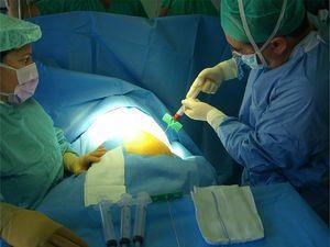 Extracción de células madre mediante punción en cresta iliaca anterior.