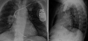 Posición de cables tras síndrome de Twiddler o síndrome de Reel. Obsérvense el circuito del generador hacia la izquierda (algo solo posible si el generador rota en su eje horizontal) y el cable de ventrículo izquierdo a nivel de la vena innominada.