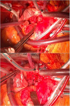 Arriba: campo quirúrgico, ya establecida la circulación extracorpórea con canulación arterial en aorta y canulación venosa bicava, con referenciado con ligadura de seda de la fístula de la arteria coronaria circunfleja a la vena cava superior, que tiene un trayecto paralelo a la arteria pulmonar derecha. Debajo: tras referenciado de la fístula de la arteria coronaria circunfleja a la vena cava superior, se ligó la misma para aislarla de la circulación coronaria.