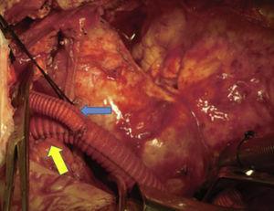 «Y-graft». Arteria carótida izquierda (flecha azul)&#59; tronco braquiocefálico (flecha amarilla). Lazo de seda negro en vena innominada.