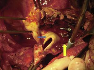 Pinzamiento de aorta ascendente y apertura de la misma. Se observa la membrana de disección (flecha azul), con hematoma intramural (flecha amarilla).