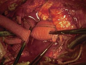 Anastomosis proximal de aorta con prótesis. Anastomosis distal ya realizada. Pinzamiento en base de prótesis de 14mm, aún no implantada.