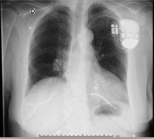 Radiografía de tórax, proyección AP. Se observa el electrodo activo aparentemente fuera del corazón.