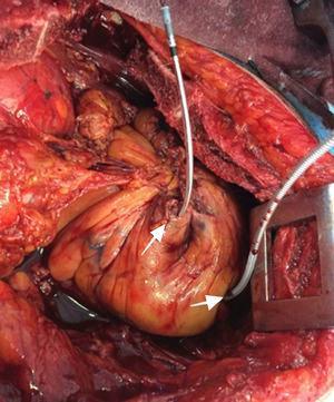 Foto quirúrgica. Las flechas blancas representan la salida de los electrodos en el ventrículo derecho en su cara anterior, las cuales se encontraban suturadas al momento.