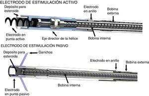 Electrodo de fijación activa (imagen superior) con extremo helicoidal que permite la conexión directa al corazón, electrodo de fijación pasiva (imagen inferior)4.