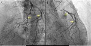 A) Lesión de la arteria descendente anterior y la diagonal (flechas). B) Lesión del tronco coronario izquierdo y la circunfleja (flechas).