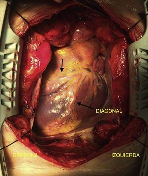 Imagen intraoperatoria donde se evidencia el ápex del corazón orientado hacia la derecha, así como la distribución de la arteria descendente anterior (DA) y la diagonal.
