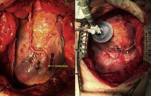 A) Arteria descendente anterior (DA) y diagonal revascularizadas con la arteria mamaria interna derecha (AMID). B) Arteria obtusa marginal (OM) revascularizada con la arteria mamaria interna izquierda (AMII).