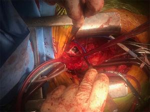 Imagen del campo quirúrgico correspondiente al primer período de parada circulatoria. Se observa la arteriotomía del tronco pulmonar principal y se puede apreciar la masa de aspecto fibroso ocupando el lecho de la arteria pulmonar.