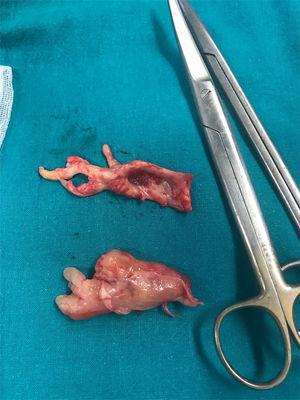 Fotografía de las muestras quirúrgicas obtenidas. La pieza superior corresponde a la trombectomía de la arteria pulmonar derecha. La pieza inferior corresponde a la masa tumoral resecada de la arteria pulmonar principal que se extendía hacia la arteria pulmonar izquierda.