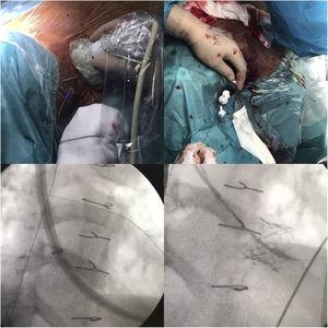 Implantación «valve in valve».