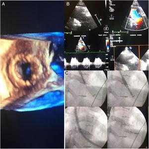 Ecocardiografía y angiografía de control.