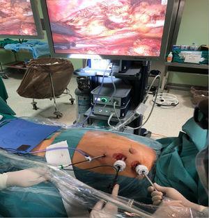 Visión de campo quirúrgica en 3D mediante cámara endoscópica. Colocación de trócares y disección endoscópica de la arteria mamaria.