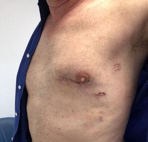 Heridas quirúrgicas a los 10 días de la cirugía.