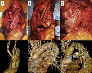 Imágenes quirúrgicas de las técnicas de implante de los TSA. A) Pastilla y bypass a subclavia izquierda. B) Injerto trifurcado. C) Pastilla única.
