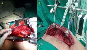 Sujeción del dispositivo a 2 tipos de separadores esternales. A: separador clásico de Favaloro modificado para disección mamaria. B: separador confeccionado por nuestro equipo. Este fue uno de los pacientes con apertura accidental de la pleura (distal).