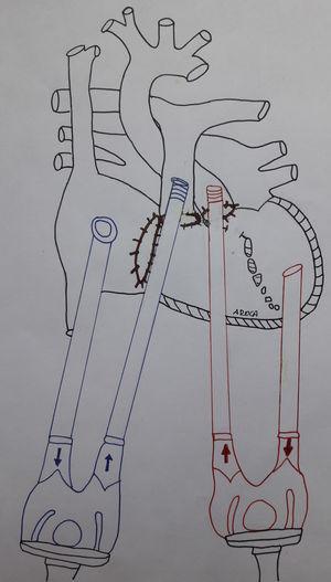 Esquema de implante del Berlin-Heart® doble del caso 2. Se han retirado el Amplatzer y el parche de cierre de la comunicación interventricular grande subaórtica. Se han cerrado con parches de pericardio los anillos valvulares tricúspide, aórtico y pulmonar (este último tras el explante de la prótesis mecánica).