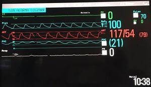 Pantalla de monitorización en la que se aprecia la curva de presión del Berlin-Heart®, la curva de pulsioximetría, la medida de presión venosa central y silencio eléctrico total en el electrocardiograma.