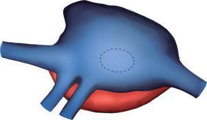 Esquema de la anatomía desde el tórax derecho. Obsérvense ambas venas pulmonares derechas drenando en la aurícula derecha.