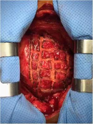 Epicardiotomía en damero para la liberación del epicardio en un paciente con epicarditis extensa.