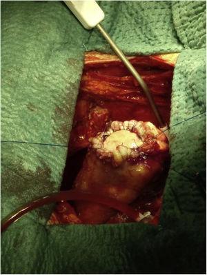 Reparación de pseudoaneurisma ventricular tras resección: parche de pericardio suturado con puntos sueltos de monofilamento y sutura circular de refuerzo. Sobre la superficie aplicamos hemostático local (bioglue).