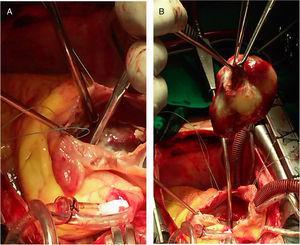 Procedimiento quirúrgico en el caso #2. A) Apertura del SIA y exposición del mixoma. B) Mixoma totalmente resecado de la AI, sostenido por pinzas en su base de implantación.