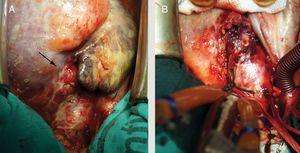 Vista intraoperatoria del corazón desde posición craneal una vez abierto el pericardio. A) Hematoma sobre la cara anterior de la aorta ascendente y grasa epicárdica del ventrículo derecho (flecha). B) Material necrótico y purulento observado al desbridar el hematoma.