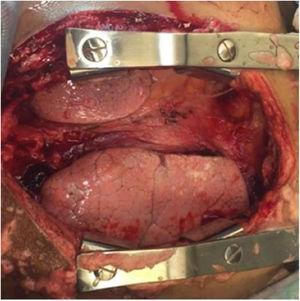 Evidencia de mediastinitis durante procedimiento quirúrgico.