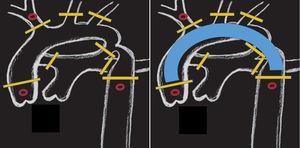 Posición de pinzas y/o torniquetes en (barras amarillas): aorta ascendente y descendente, base de los 3 troncos supraaórticos, ductus y ramas pulmonares. La canulación selectiva de la raíz aórtica, arteria innominada y aorta descendente (círculos en rojo) permite una perfusión corporal total. Solo el arco aórtico permanence exangüe (imagen derecha).