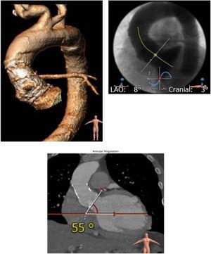 Planeación preoperatoria evaluando los diámetros de toda la aorta con la angiotomografía computarizada.