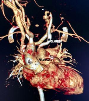 Reconstrucción tridimensional de la AngioTAC donde se muestra (*) la anomalía vascular de la carótida común izquierda.