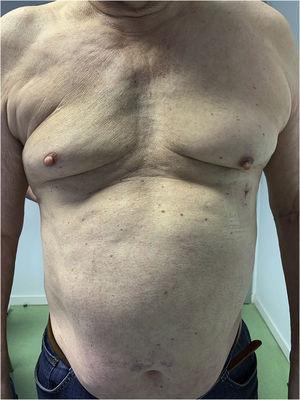 Tres meses tras la intervención.