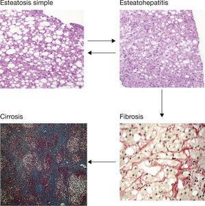 Lesiones histológicas del hígado graso no alcohólico.