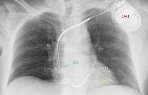 Desfibrilador automático implantable.AD: aurícula derecha&#59; DAI: desfibrilador automático implantable&#59; VD: ventrículo derecho&#59; VI: ventrículo izquierdo.