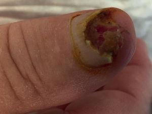 Carcinoma escamoso de la uña del dedo pulgar. Observamos erosión/destrucción de la uña por el tumor. No explicaba ningún traumatismo previo que pudiera justificar esta erosión.